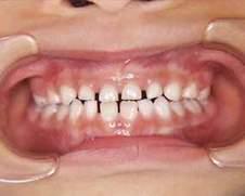 乳歯 歯並び.jpg